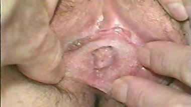 Real Virgin Defloration After Gyn Examination (Very Hard Hymen)